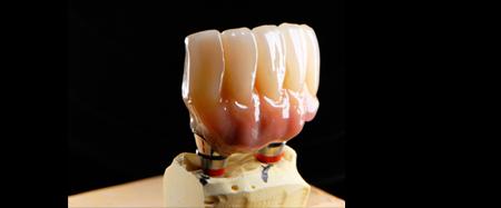 歯科補綴装置